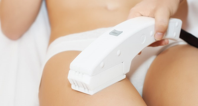 the process of laser hair removal